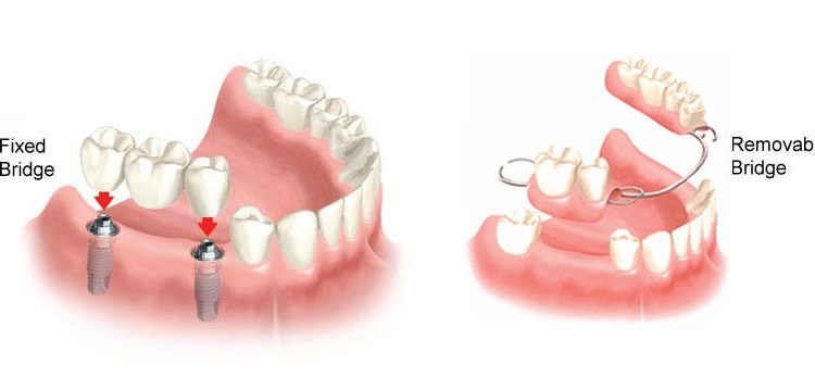 dental implant fixed bridge