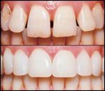 Porcelain Veneers, general and cosmetic dental services