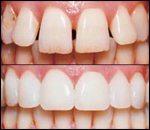Porcelain Veneers, general and cosmetic dental services